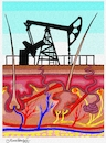 Cartoon: Dermatology or Petrol (small) by halisdokgoz tagged dermatology,or,petrol